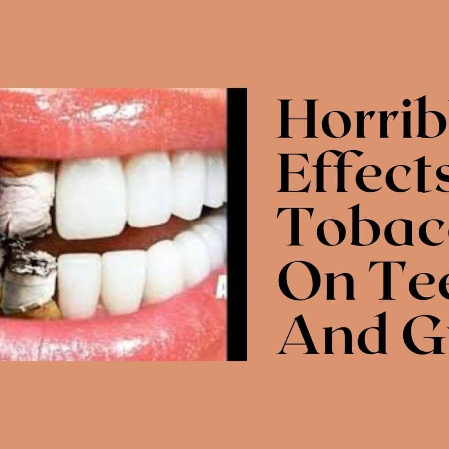 Horrible Effects Of Tobacco On Teeth And Gums