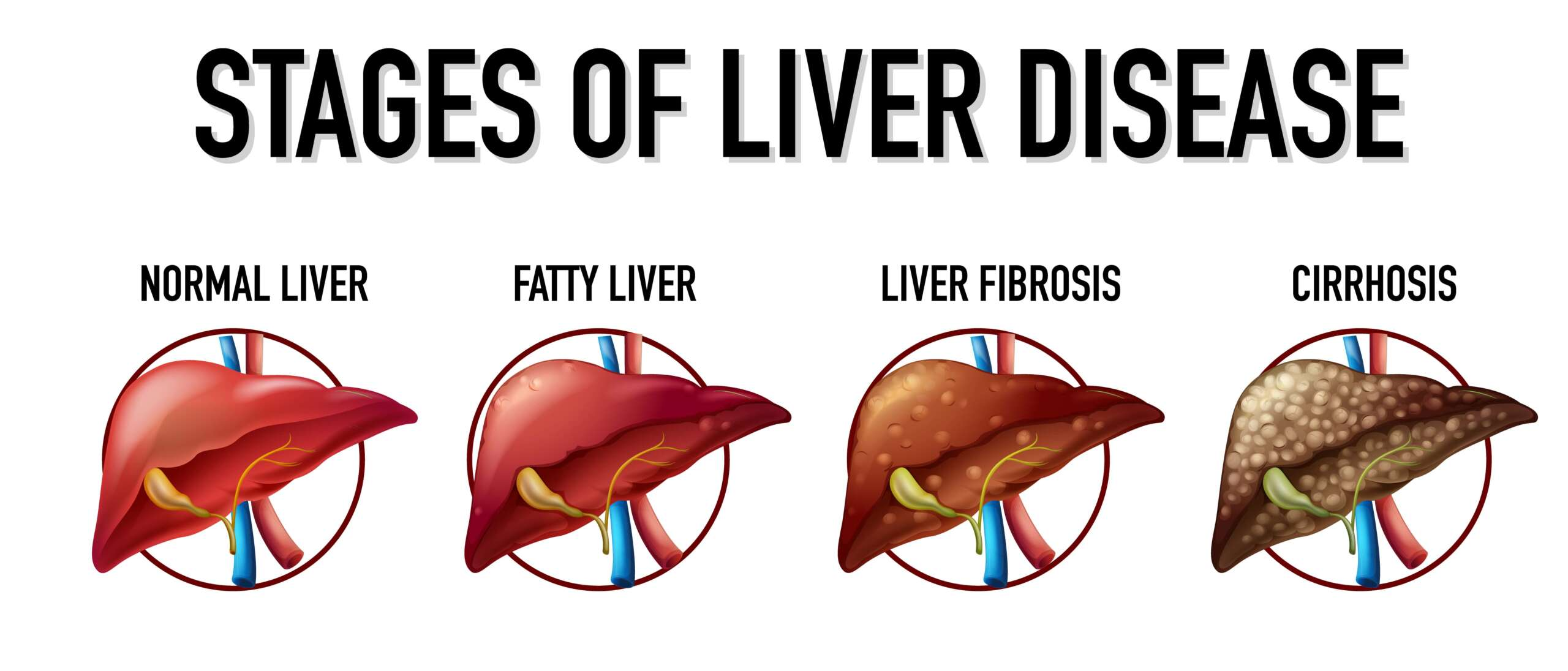 Different stages of liver disease